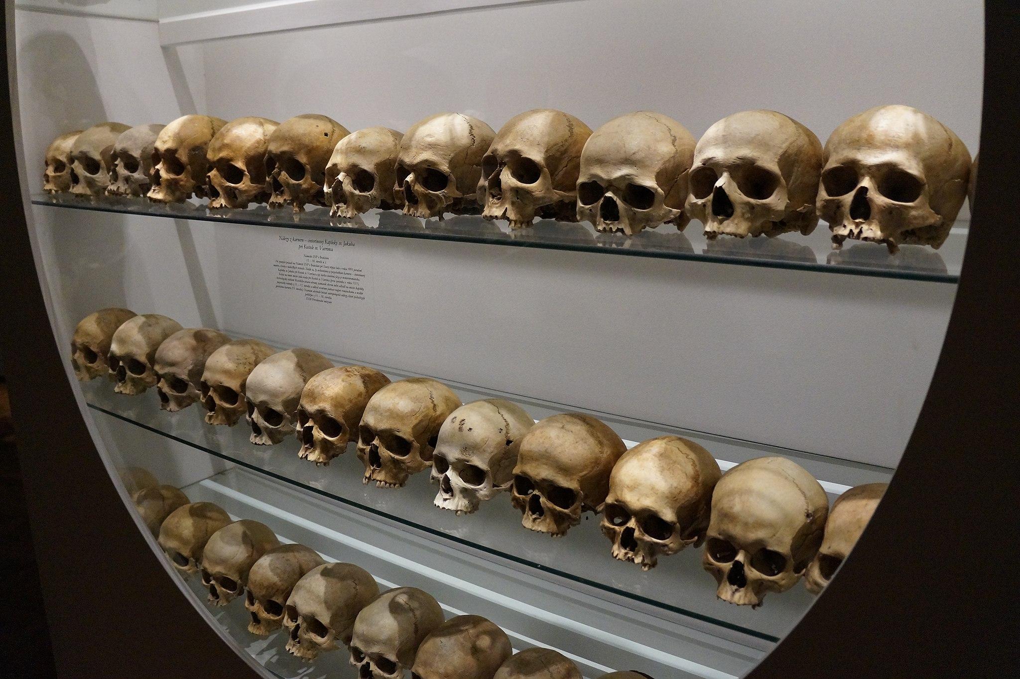 11.3 Skulls on Display