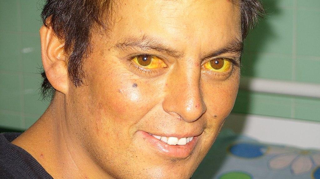 15.6.1 Jaundiced eye