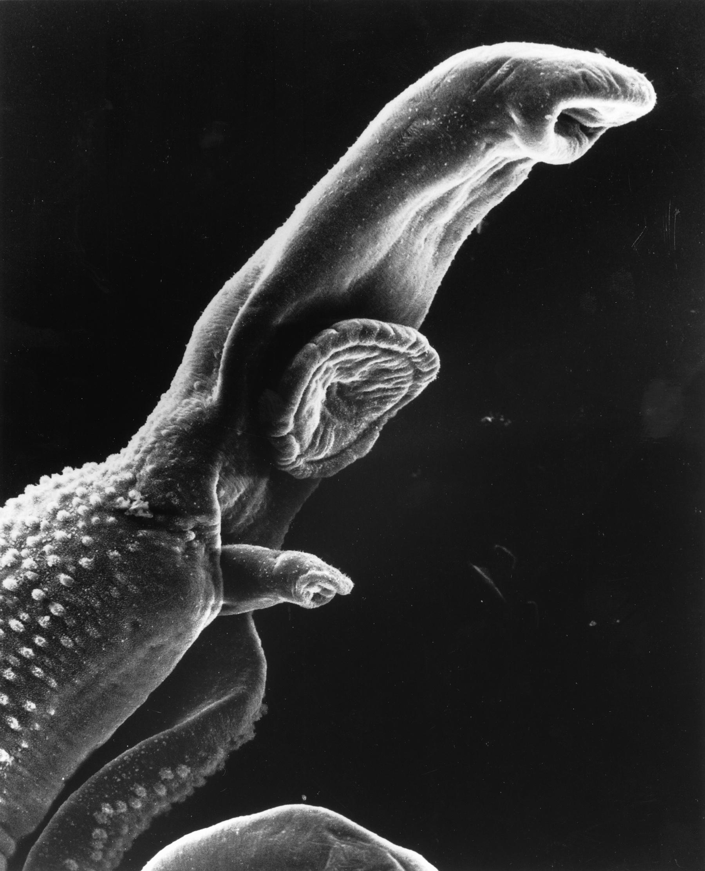 17.2.1 Schistosome Parasite