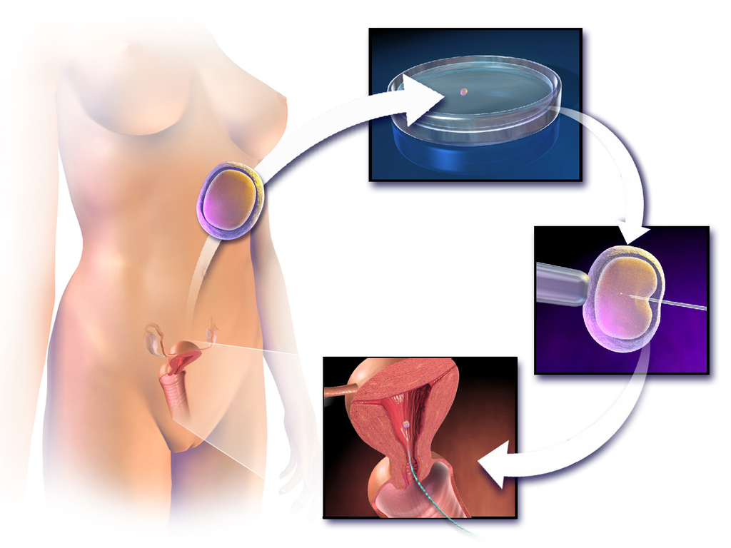 18.10.4 Assisted Reproductive Technology