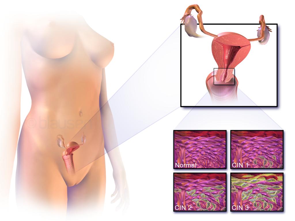 18.9.2 Cervical Cancer