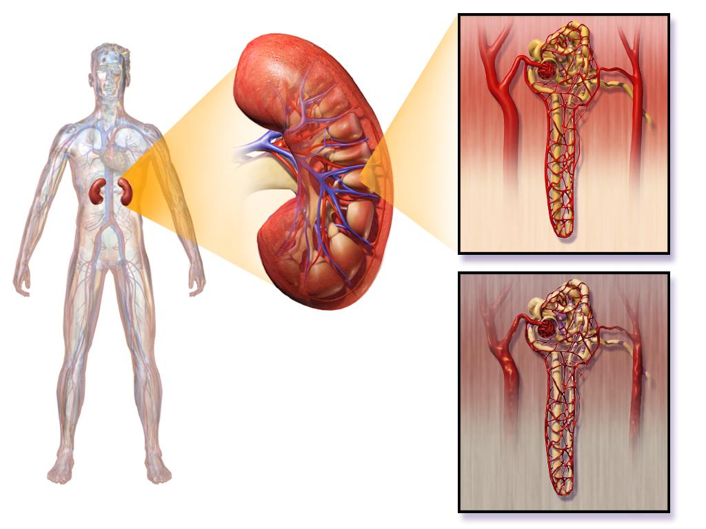 16.6.2 Diabetic Nephropathy