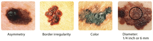 10.7 ABCDs of skin cancer