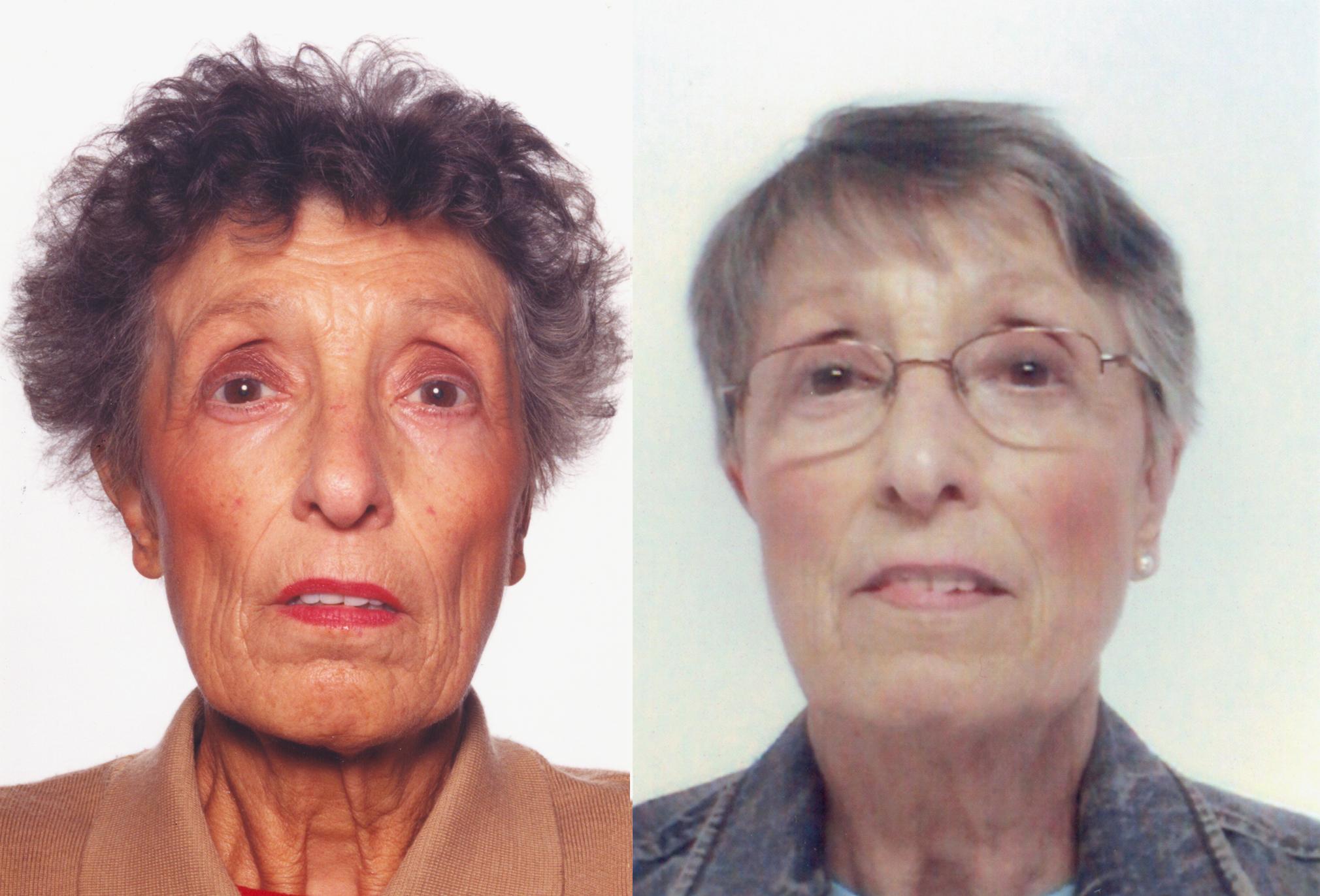 Addison's Disease: Hyperpigmentation
