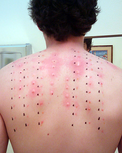 17.6.5 Allergy Tests