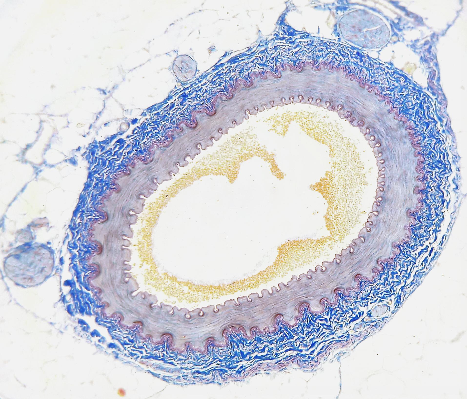 14.4.8 Artery Cross Section