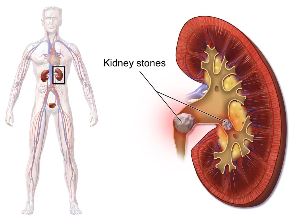 16.6.5 Kidney Stones