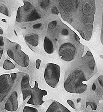 Spongy Bone