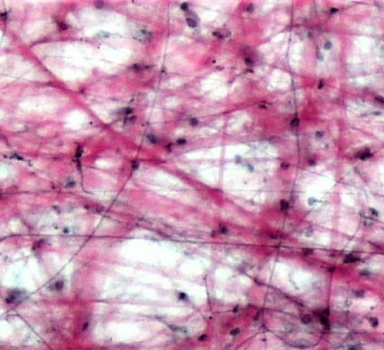 Loose Fibrous Connective Tissue