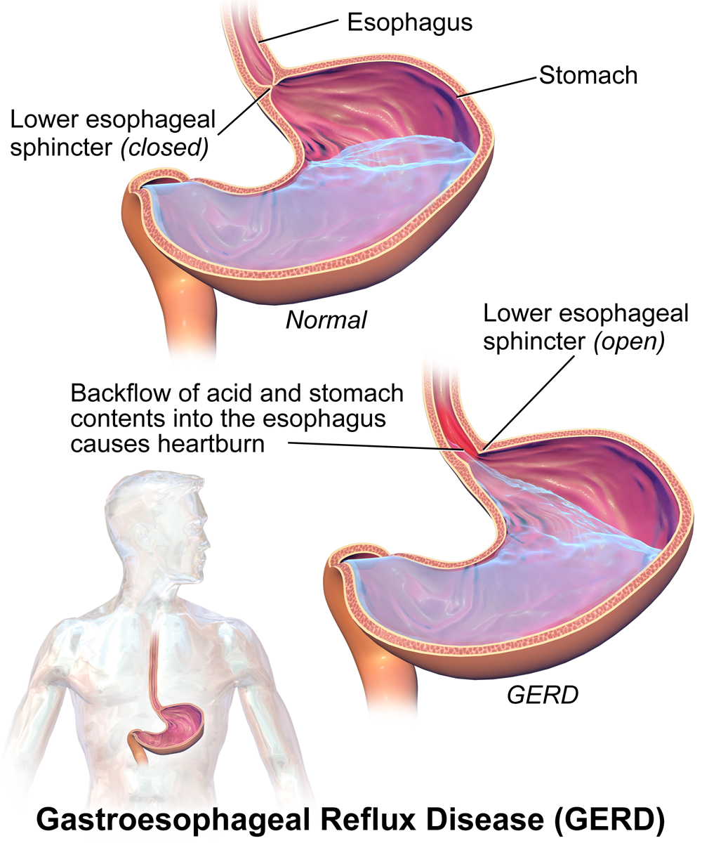 Image shows two diagrams of the stomach and esophagus. In the first diagram, the esophageal sphincter is tightly closed, preventing contents of the stomach from re-entering the esophagus. In the second diagram, the esophageal sphincter is relaxed, open, and the stomach contents are able to re-enter the esophagus.