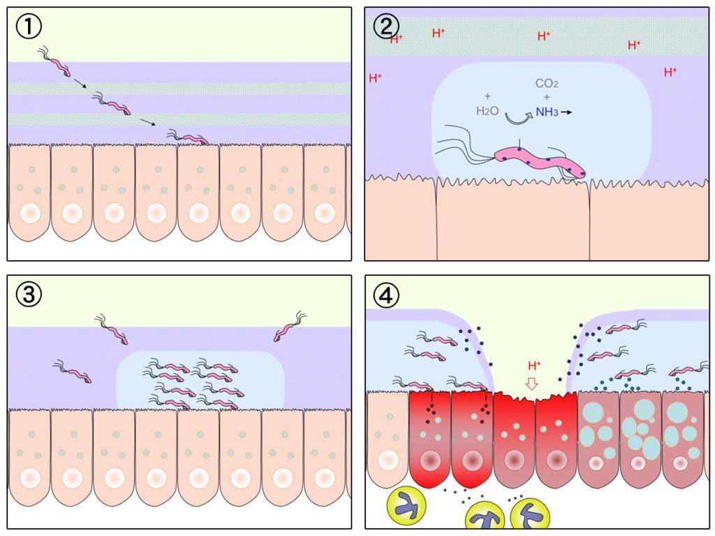 15.7.4 H.Pylori and Peptic Ulcer