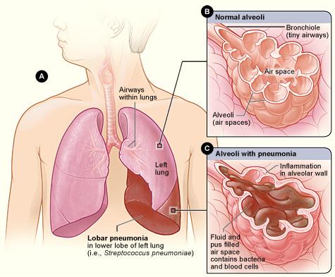 13.5.4 Pneumonia