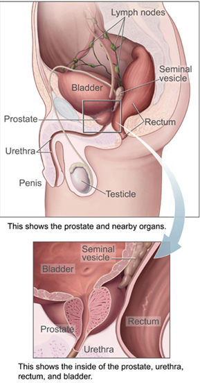 18.5.6 Location of the prostate