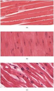 12.3 Three muscle tissue types: skeletal mjuscle, smooth muscle and cardiac muscle.