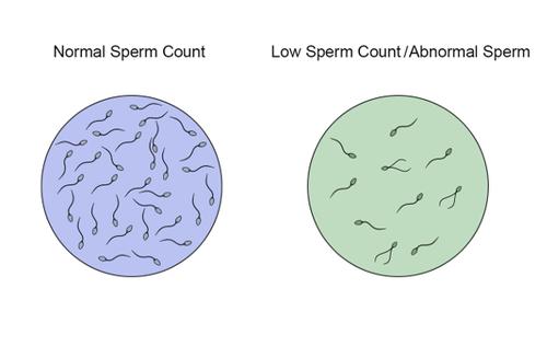 18.12.3 Sperm Count