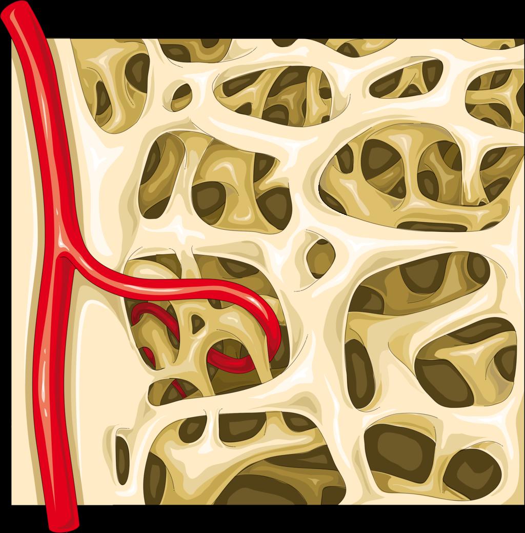 11.4.5 Spongy Bone Diagram