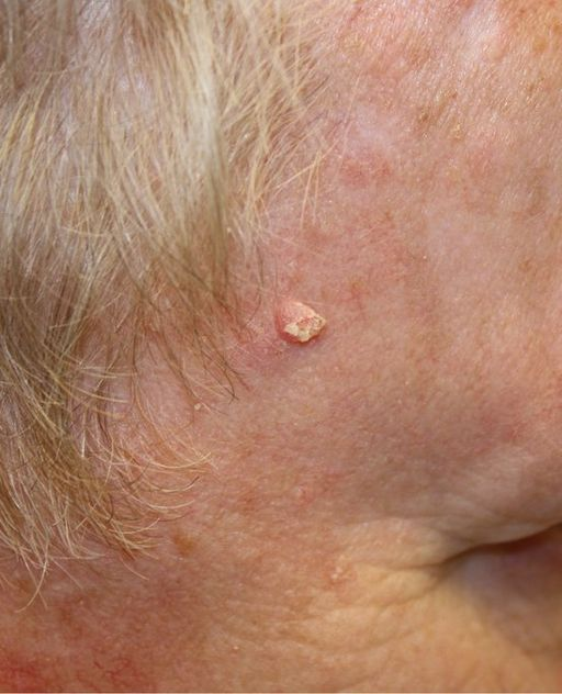 10.7 Squamous cell carcinoma