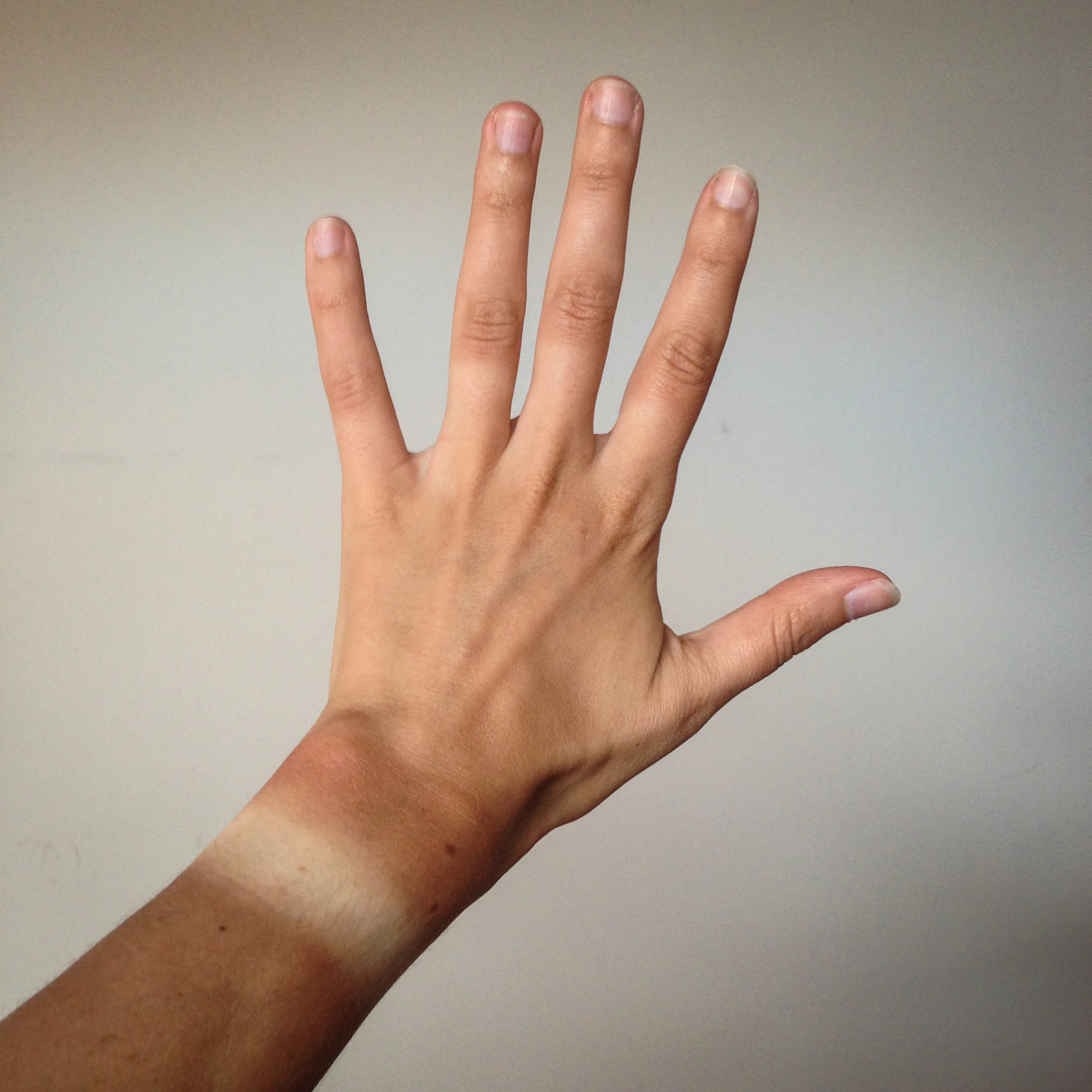 Image shows a hand with a tan line where a watch had been worn.